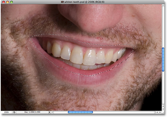 Using the Lasso Tool in Photoshop to select an area around the man's teeth. Image © 2008 Photoshop Essentials.com.