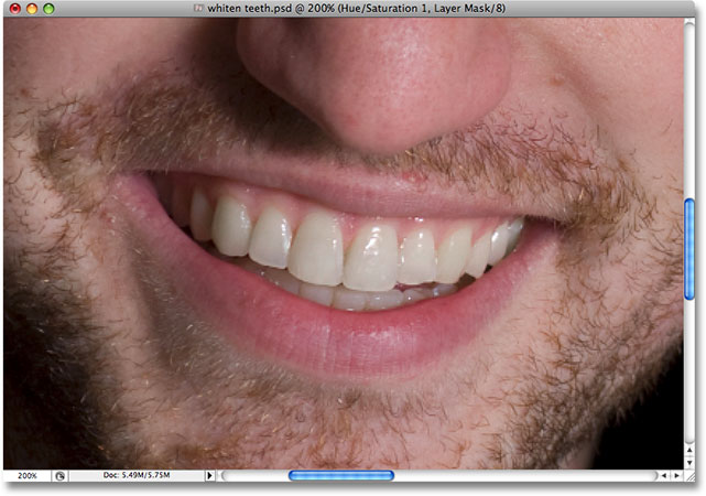 The teeth are now whiter after removing the yellow. Image © 2008 Photoshop Essentials.com.